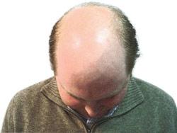 File:Baldness.jpg